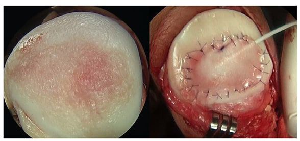 Advances In Articular Cartilage Defect Management For