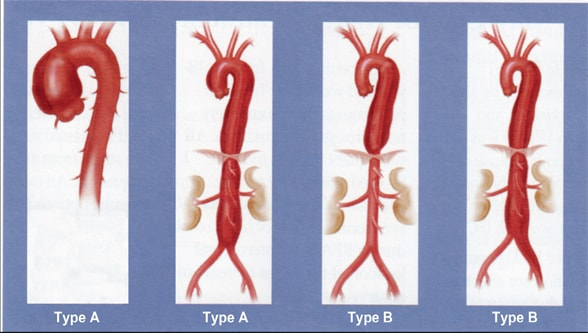 Image of standard classification of aortic dissection