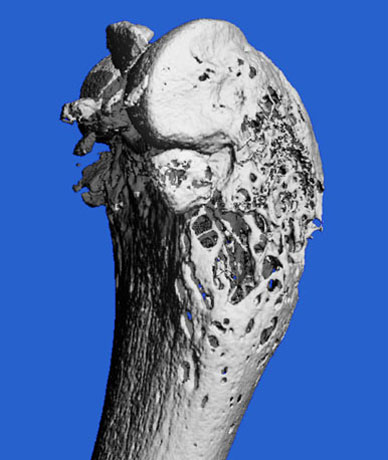 MicroCT scan image of bone loss