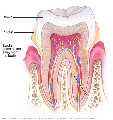 Illustration showing periodontitis