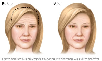 Illustration of brow lift results