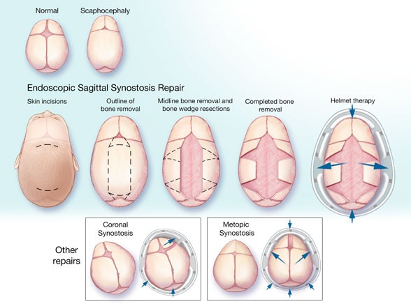 Craniosynostosis - What is it? ( We need Steemian Prayers ...