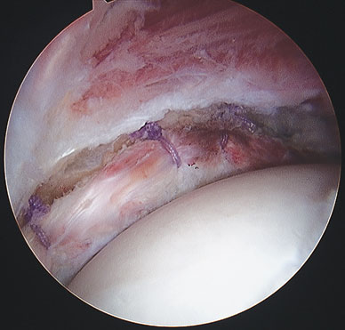 Image of labral seal against the femoral head