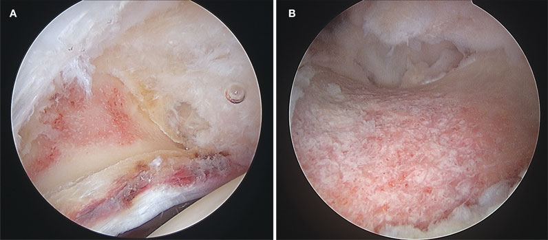 Image of pincer and cam removal, post-resection