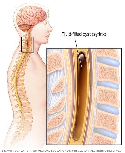 Syringomyelia Symptoms And Causes Mayo Clinic