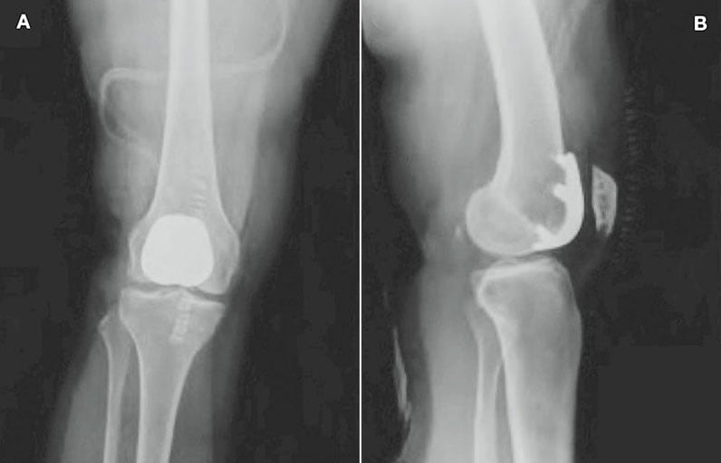 Images of postoperative radiographs for patellofemoral arthroplasty