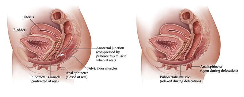Illustration of puborectalis muscle at rest and during defecation