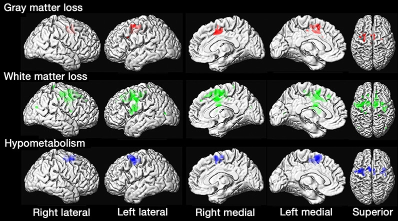 Images of brains of patients with PPAOS compared with controls