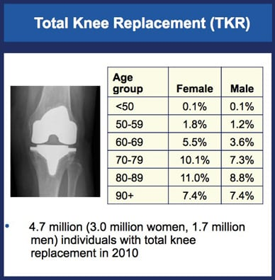 Chart showing prevalence of knees replaced