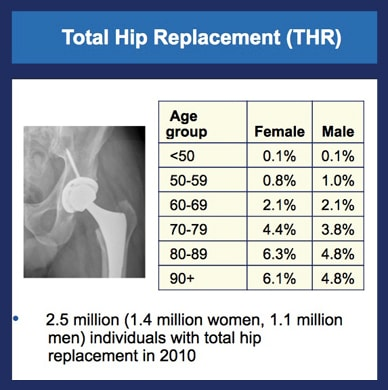 Chart showing prevalence of hips replaced