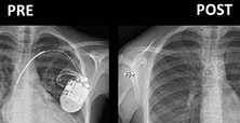 Chest radiograph before and after heart transplantation