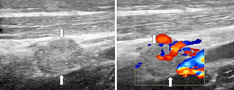 Neck ultrasound of patient with recurrent metastatic papillary thyroid cancer in a hypervascular right neck lymph node