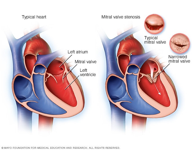 Normal heart and heart with mitral valve stenosis