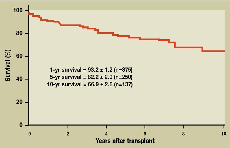 Graph of Kaplan-Meier survival curve for cardiac transplant patients at Mayo Clinic's campus in Minnesota
