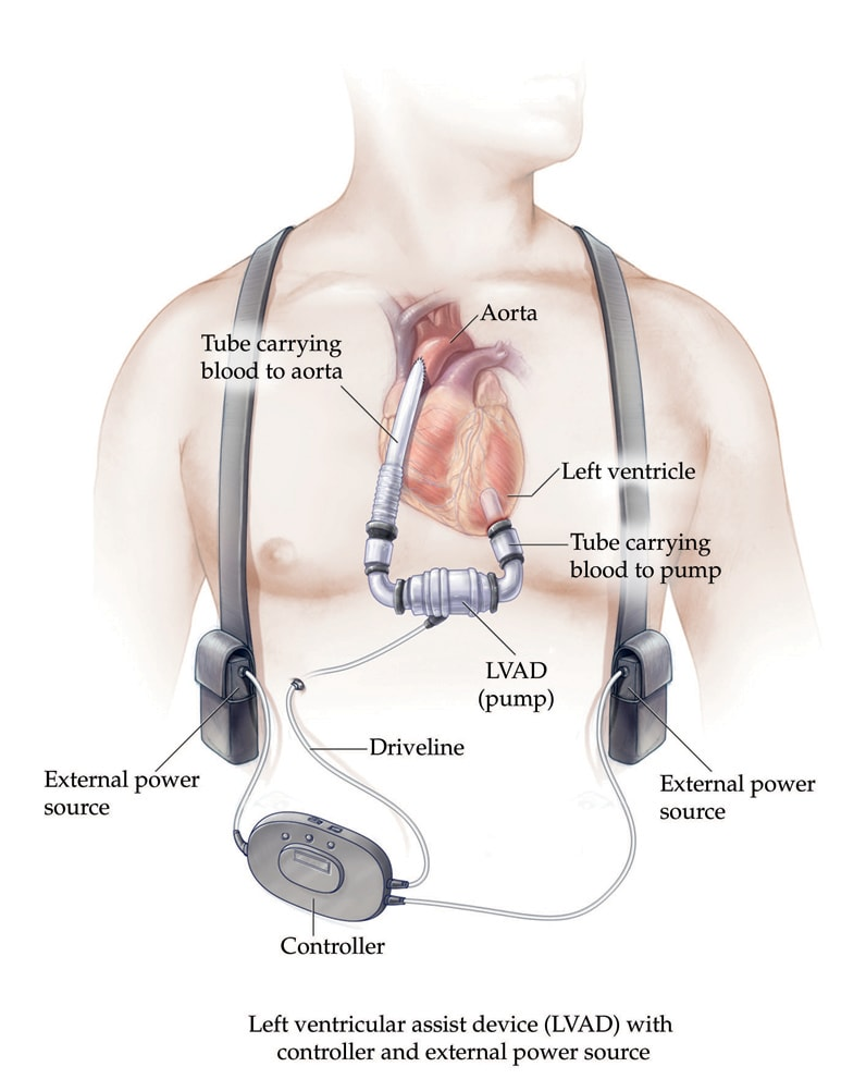 Image of LVAD pump with controller and portable battery pack