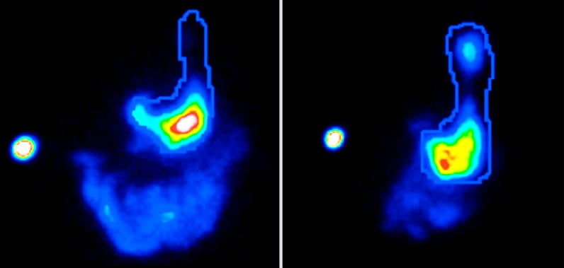 Images of gastric emptying scintigraphy