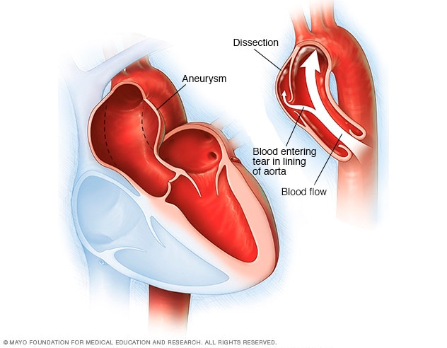 Illustration showing an aortic dissection and aortic aneurysm