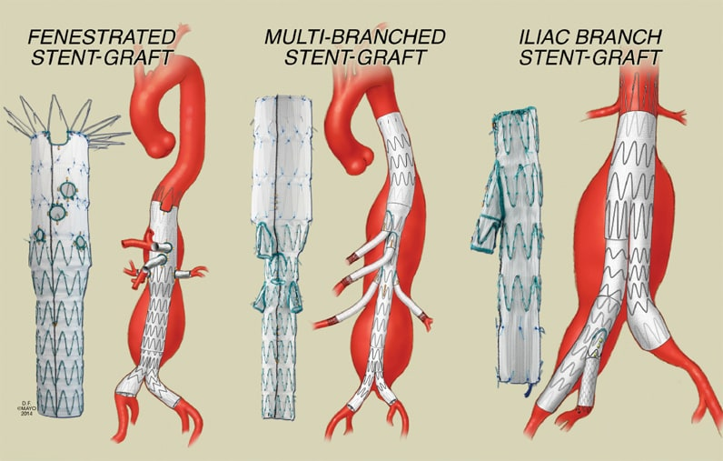 Image of endovascular options for branch incorporation