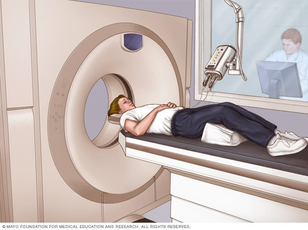 Illustration showing a CT scan