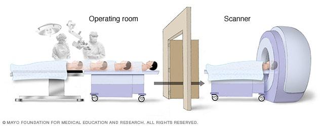 Intraoperative MRI