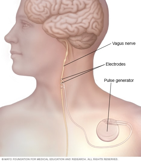 Vagus nerve stimulation pulse generator