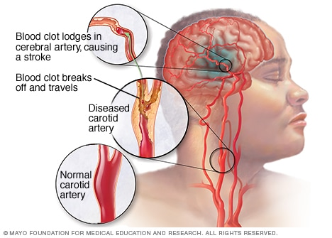 Ilustración de un accidente cerebrovascular isquémico