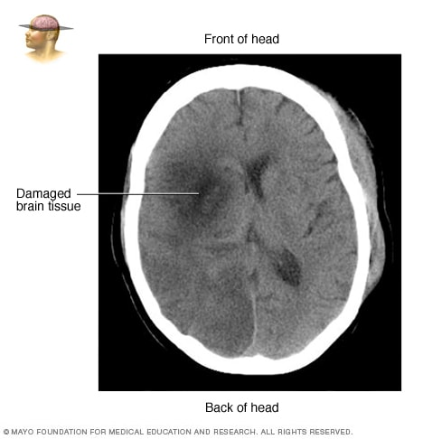 Brain tissue damaged by stroke