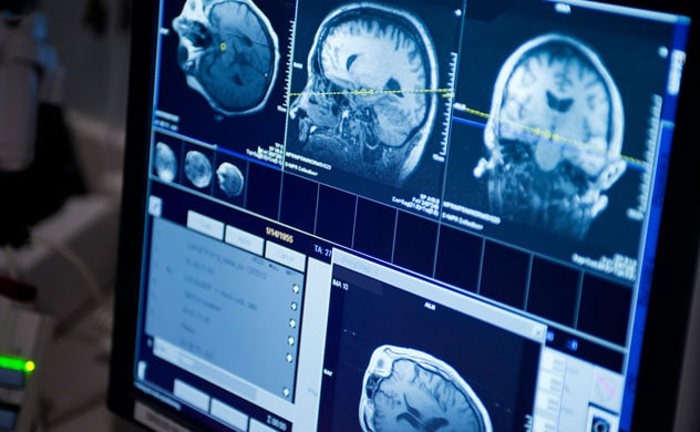 Brain metastases - Diagnosis and treatment - Mayo Clinic