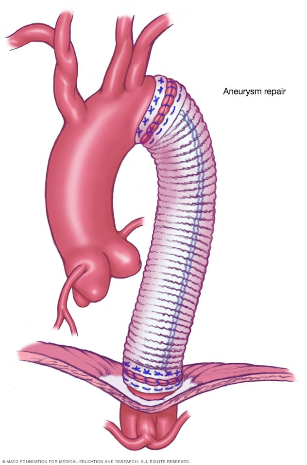 Illustration showing open surgery for thoracic aortic aneurysm