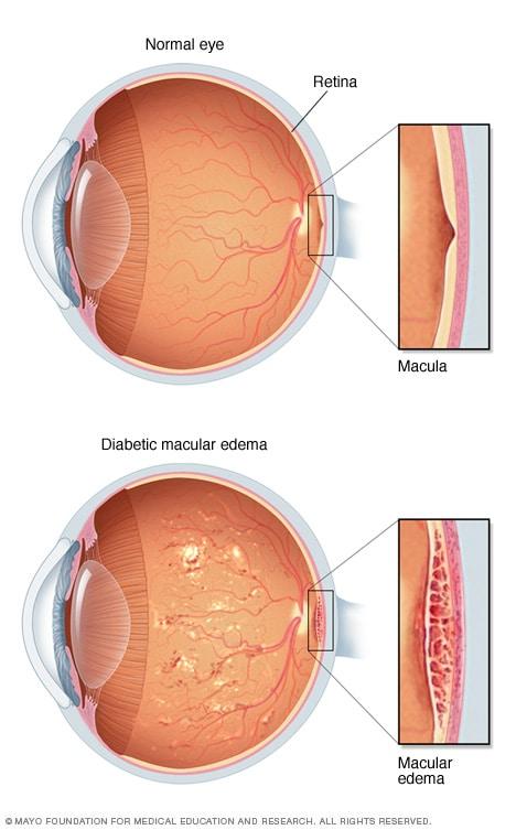 Resultado de imagen de diabetic macular edema