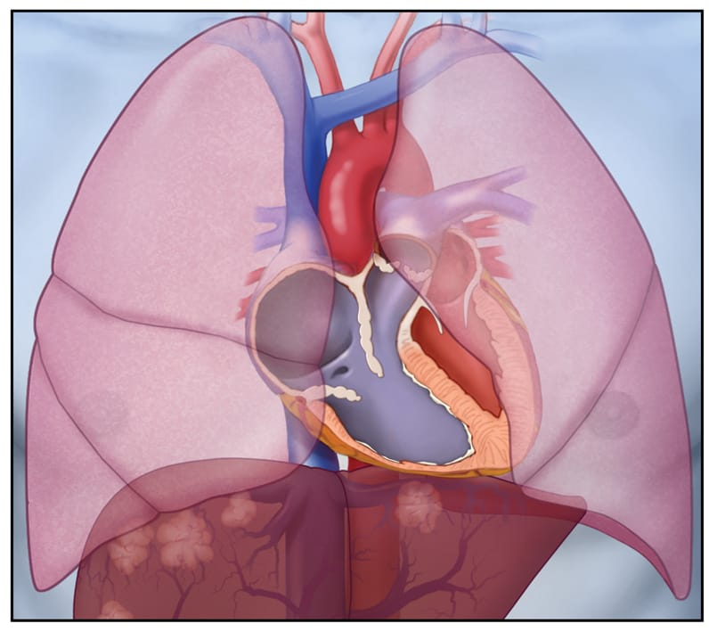 Image of thickening of tricuspid and pulmonary valves