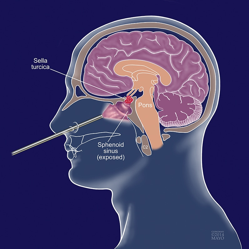 Illustration of endoscopic endonasal approach