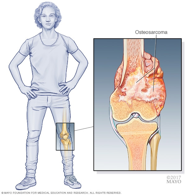 Illustration showing osteosarcoma