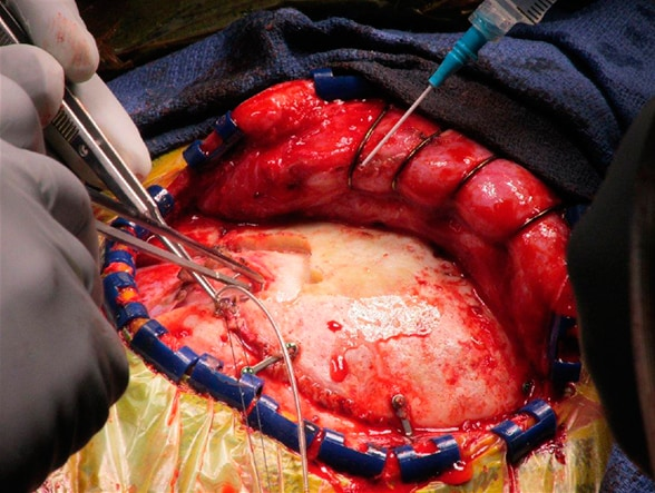 Image of surgery to implant the neurostimulator