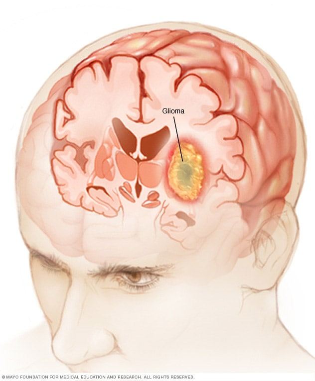 Glioma - Symptoms and causes - Mayo Clinic