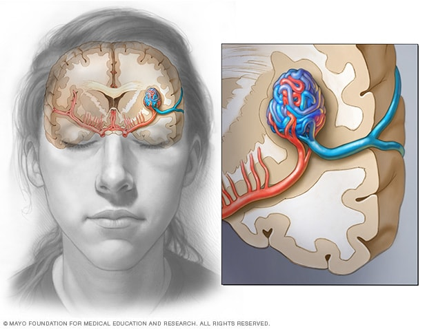 Brain AVM (arteriovenous malformation) - Symptoms and causes - Mayo