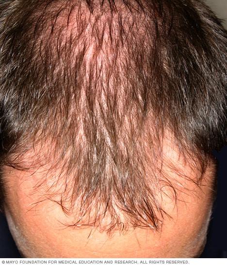 how to make hairline grow back for men