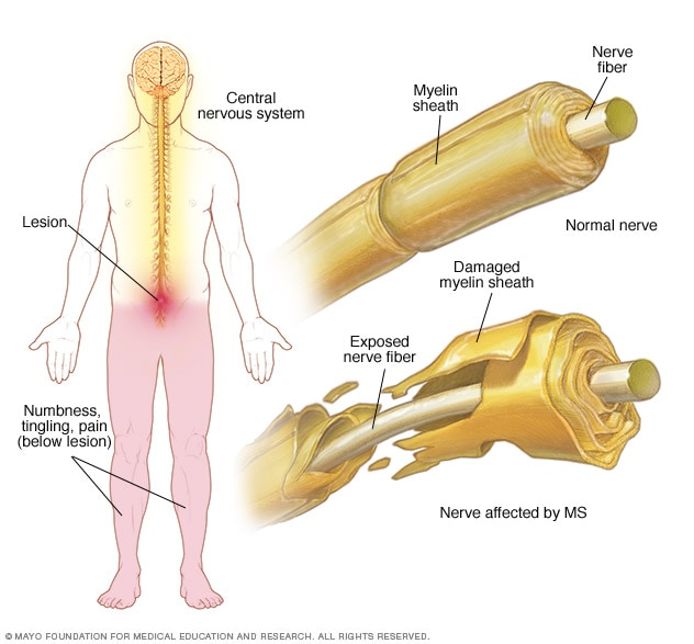 MS-related nervous system damage