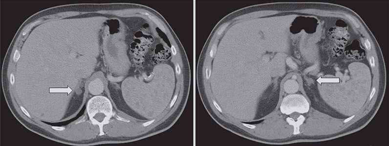 Adrenal computerized tomographic scan of a 59-year-old man with hypokalemia and poorly controlled hypertension