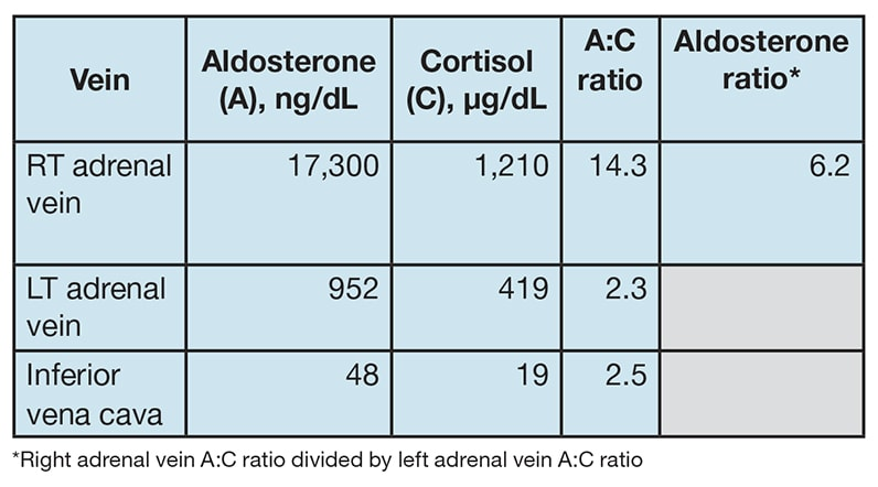 Table of results of bilateral adrenal venous sampling