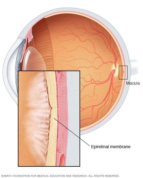 Illustration Of Epiretinal Membrane