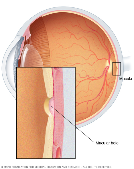 Illustration of macular hole