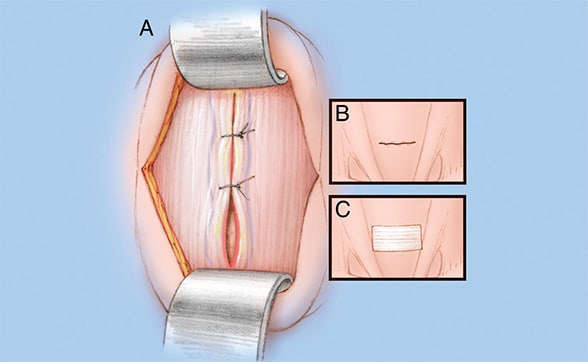 Image of closed incision
