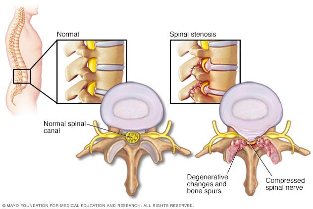 spinal stenosis mayo clinic