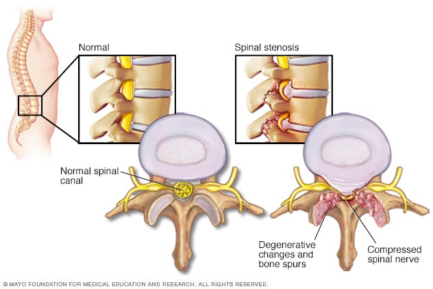 How spinal stenosis can compress spinal nerves.