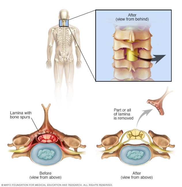 Illustration of cervical laminectomy