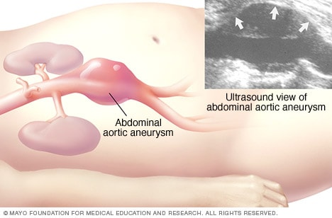 Illustration showing abdominal ultrasound of an abdominal aortic aneurysm