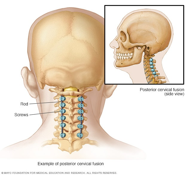 Illustration showing hardware used to fuse spine from back of neck.
