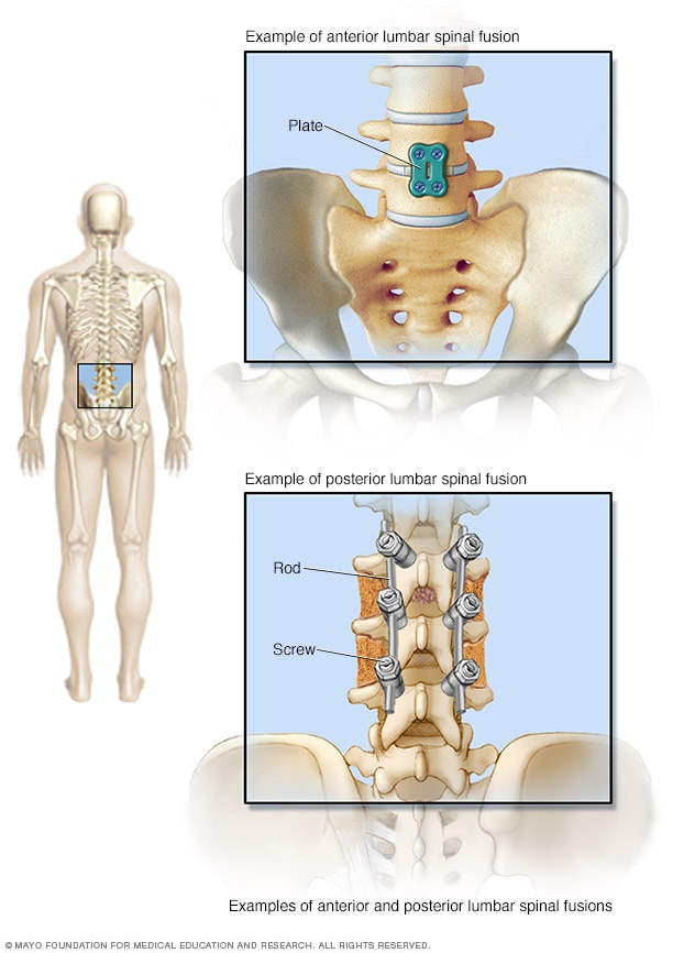 Illustration showing hardware used to fuse lumbar spine.