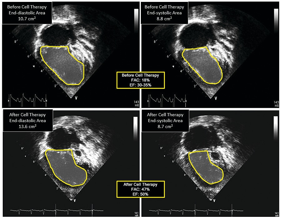 Apical echocardiographic views before and after intramyocardial injection of umbilical cord blood-derived stem cells